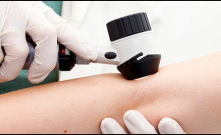 dermoskopski-pregled-mladeza